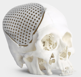 Cranial implant in Ti64 alloy customized to a patient's anatomical requirements. (image source: Imaginarium)